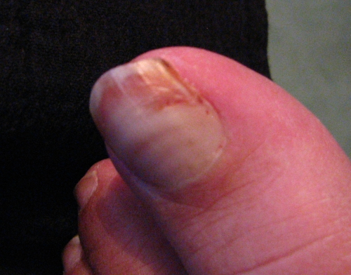 How to Remove a Split Toenail -- The Doctors